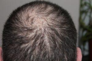 chute des cheveux chez l'homme
