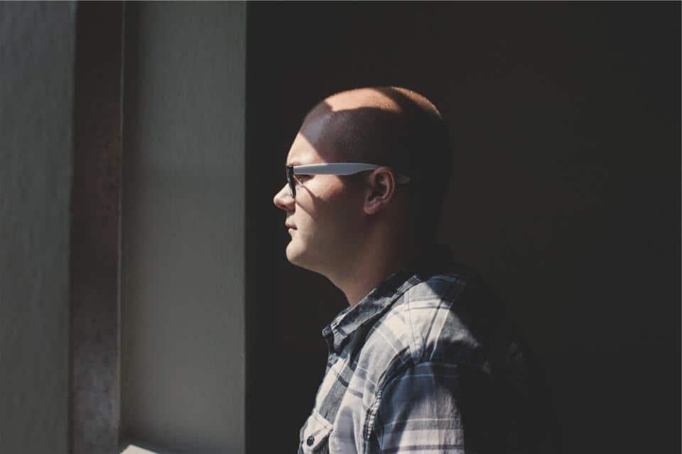 homme chauve souffrant d'alopécie (calvitie)