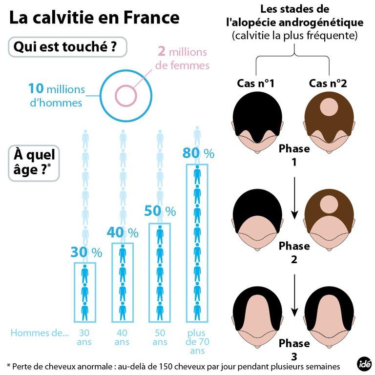 infographie sur la calvitie