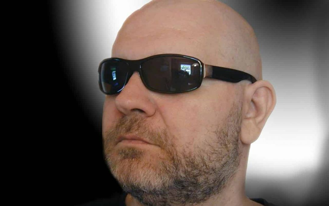 chauve homme alopecie