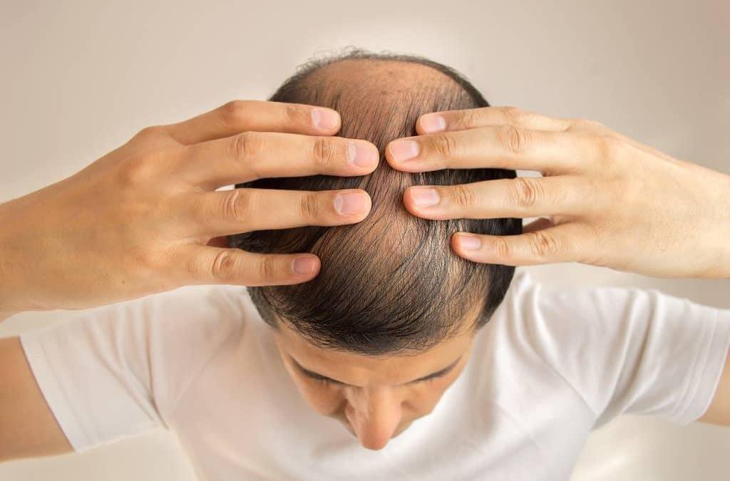 Que faire pour lutter contre la chute des cheveux ?