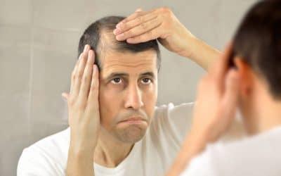 Quelles sont les raisons d'une perte de cheveux chez l'homme ?