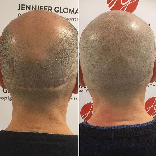 dermopigmentation2