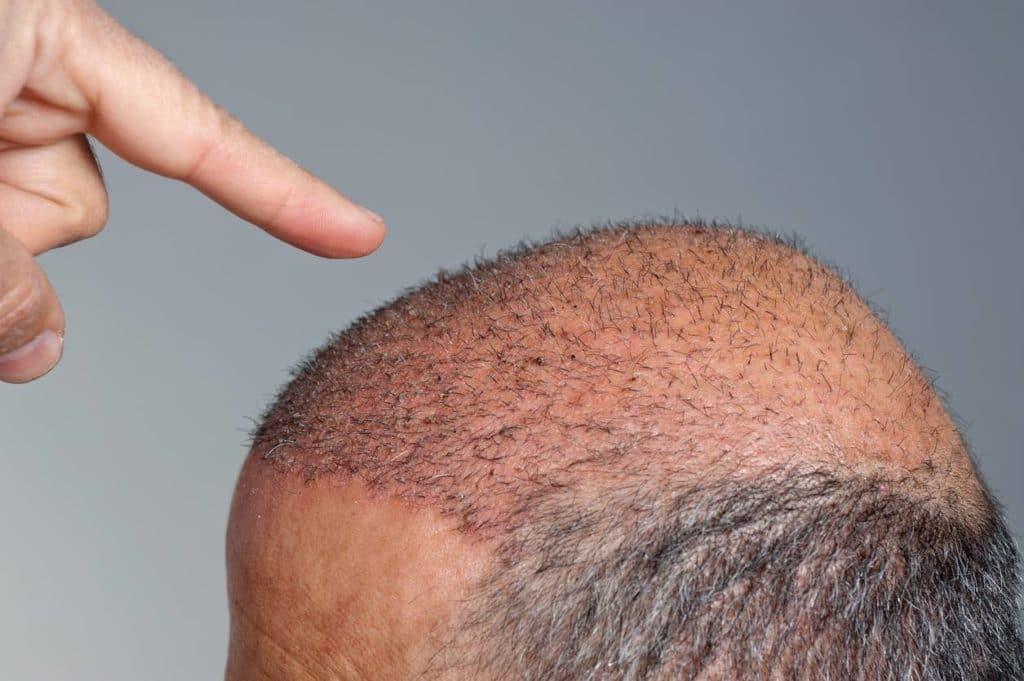 fatalite-cheveux