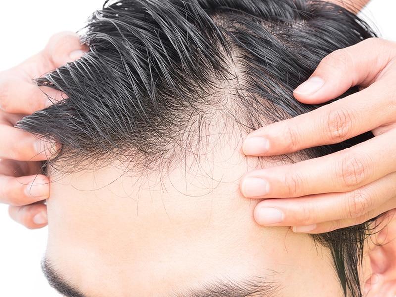 Greffe de cheveux en Turquie : un marché en pleine expansion